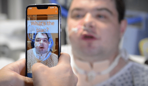 SRAVI lipreading app shown with a patient